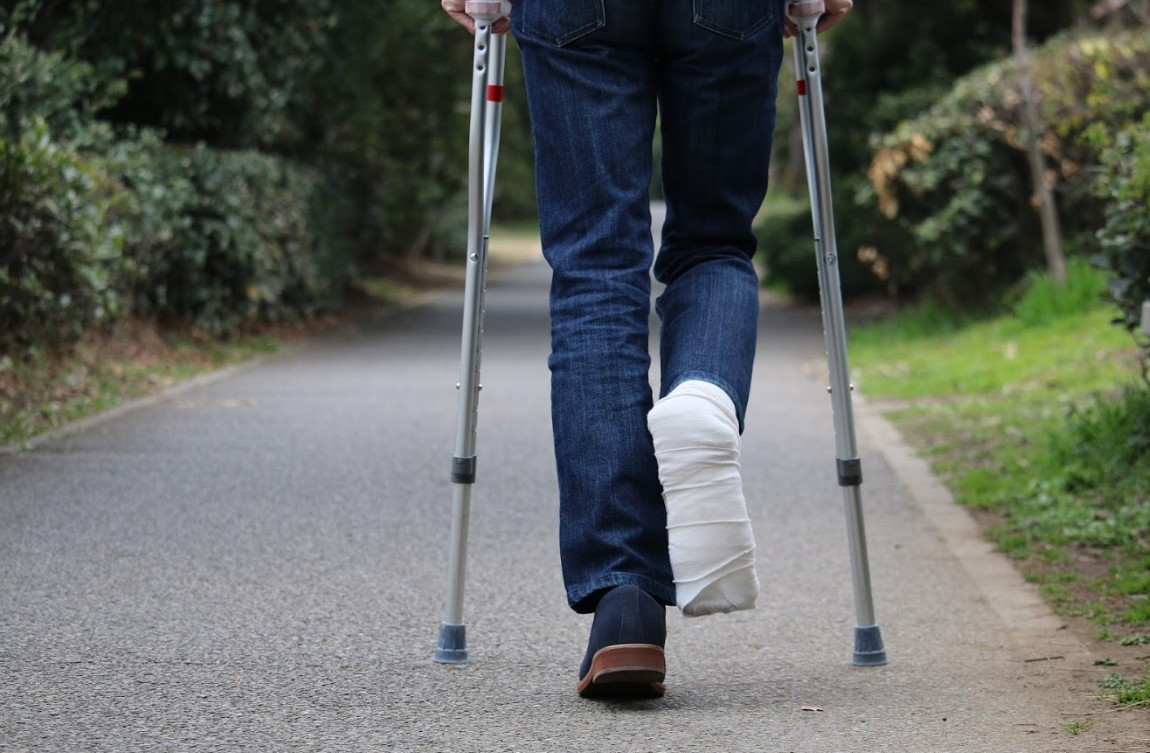 man walking with a right foot injury | Slip and Fall Frequently Asked Questions